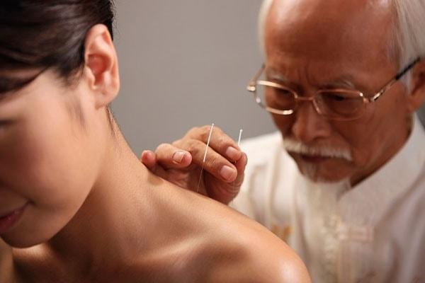 Phương pháp điều trị liệt nửa người bằng châm cứu 1