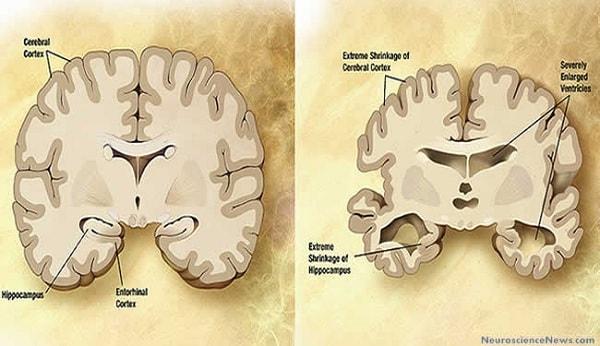 Dấu hiệu nhận biết và nguyên nhân gây ra bệnh teo não 1