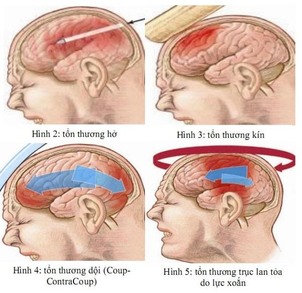 Người bị chấn thương sọ não có nguy cơ cao bị rối loạn tâm thần 2