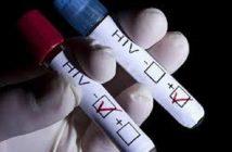 Bệnh HIV có mấy giai đoạn