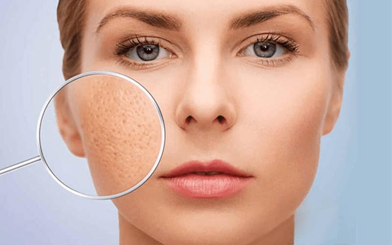 Lỗ chân lông to và da mỏng dần là dấu hiệu rõ ràng của tình trạng lão hóa da