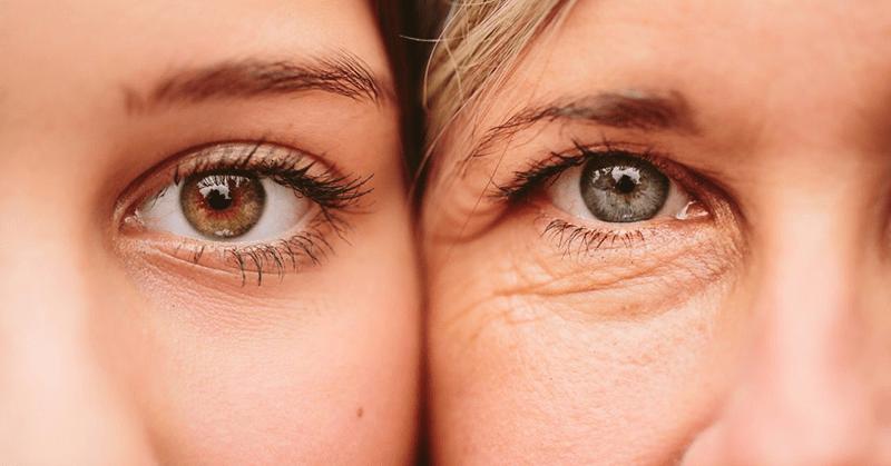 Xuất hiện bọng mắt, quầng thâm là dấu hiệu rõ ràng của tình trạng lão hóa da