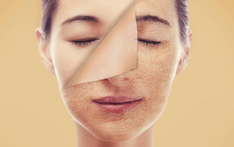 Màu da sạm đi là dấu hiệu rõ ràng của tình trạng lão hóa da
