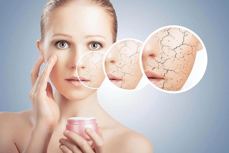 Da khô hơn là dấu hiệu rõ ràng của tình trạng lão hóa da