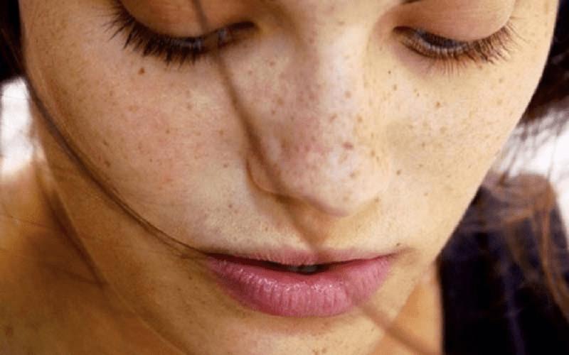 Da xuất hiện đốm đồi mồi là dấu hiệu rõ ràng của tình trạng lão hóa da